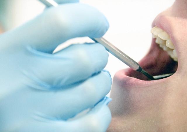 20〜40代が意識したい歯周病ケア