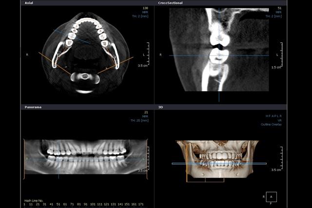 八幡西区の歯医者なら審美・予防・小児・矯正・一般歯科に対応する【HANAデンタルクリニック】へ