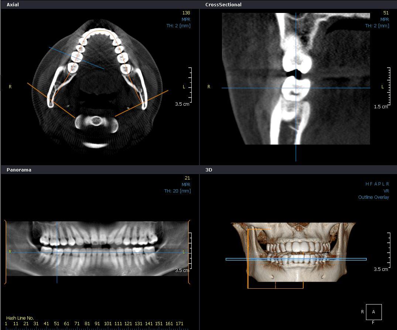 歯科CT-北九州市/八幡西区/歯科/歯医者/HANAデンタルクリニック 北九州市八幡西区の歯科